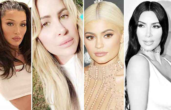 Stars Who Double Their Lip Size With Fillers & Makeup